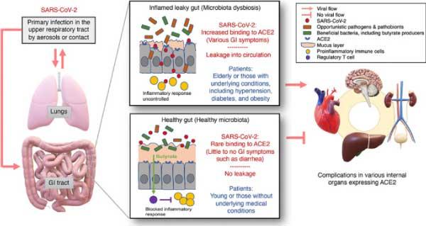 Covid 19 et complications pulmonaires