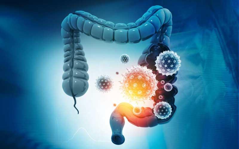 Covid long et perméabilité intestinale