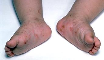 Scabies foot