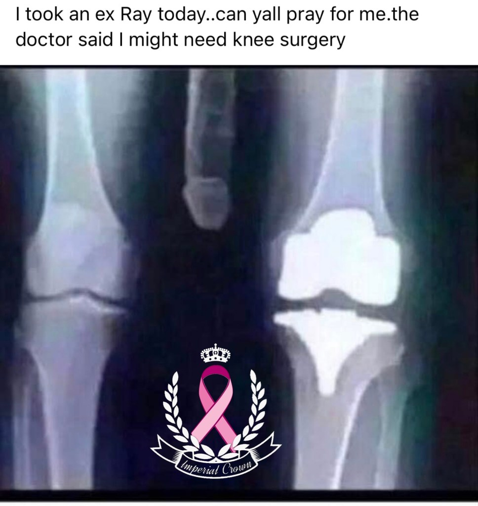I took an ex Ray today can yall pray for me the doctor said I might need knee surgery