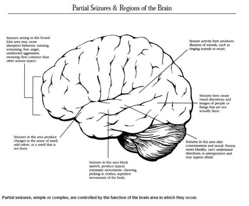 partial_Seizures_Brain