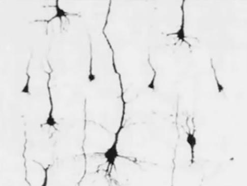 Brain damage: Neurons under chronic stress, excess cortisol