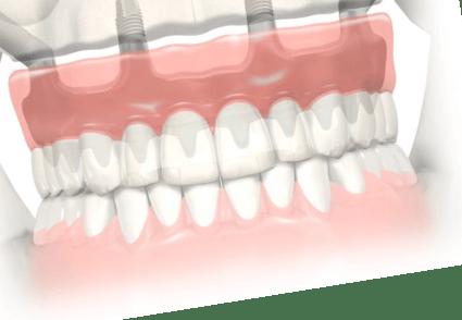 ALL-ON 4 | Все зубы на 4 имплантах – Цены, Отзывы