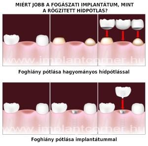 Miért jobb a fogászati implantáció, mint a hídpótlás?