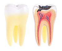 A fogszuvasodás megelőzése fogorvos