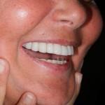 Implantologia risultato