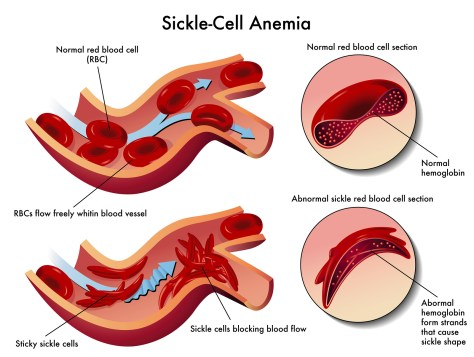 medical illustration of the effects of sickle cell anemia