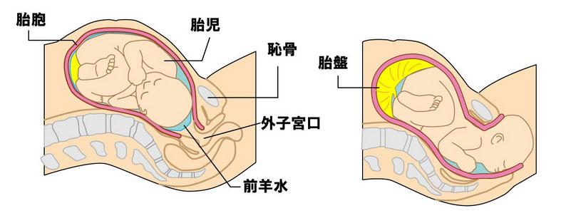 自然分娩で産道を通過する新生児