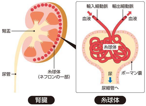 腎臓で動脈硬化が起こる