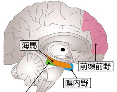 認知症になるとダメージを受ける脳内の海馬