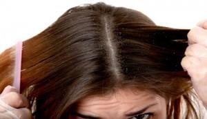 dry scalp2