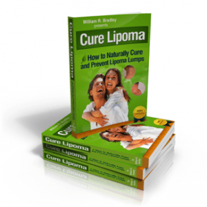 lipoma cure without operation