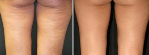 cellulite thighs