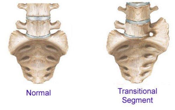 An extra vertebra in5d in 5d in5d.com www.in5d.com http://in5d.com/