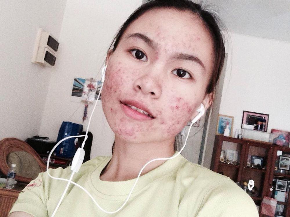 5 19 Walaupun Wajahnya Penuh dengan Jerawat, Cewek ini gak malu untuk tetap tampil cantik. Lihat foto fotonya