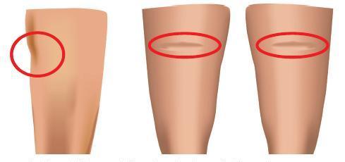 lipoatrofia-semicircular