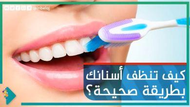 صورة كيف تنظف أسنانك بطريقة مثالية؟