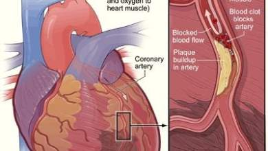Photo of Prevention from Heart Attack – Share this Post
