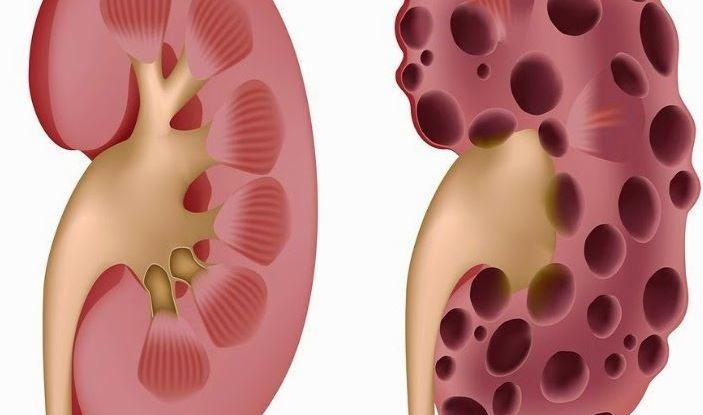 Detoxify Kidneys