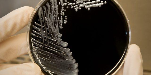 Legionella-bacteria-Legionnaires-disease