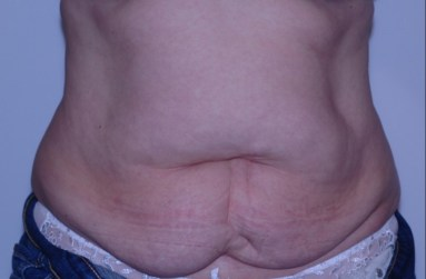 abdominoplasty5,front,before