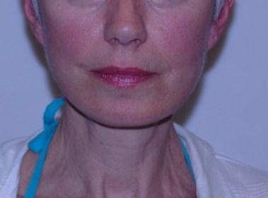 facenecklift2,front,after