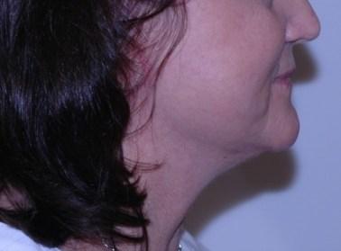 facenecklift9,side.after