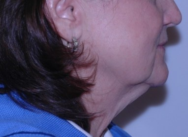 facenecklift9,side,,before