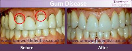 gum-disease-before-and-after-1-s