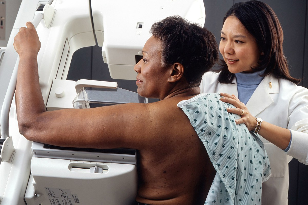 Women of color should consider earlier breast cancer checks