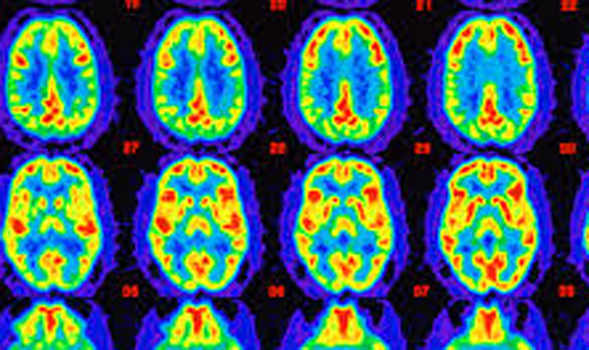 Delaying Onset of Blood Pressure reduces Risk of Dementia