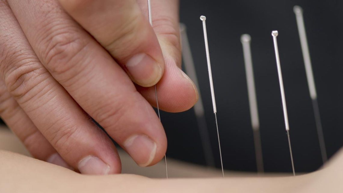 Waarom wil Wikipedia u van acupunctuur beroven?