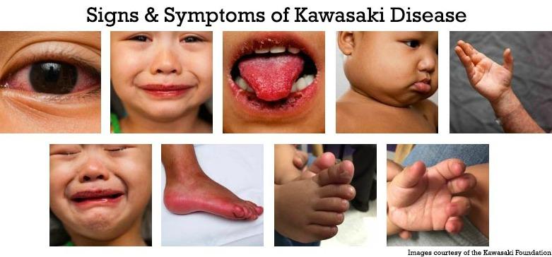 Symptomen van de ziekte van Kawasaki bij kinderen in het VK, mogelijk gekoppeld aan coronavirus