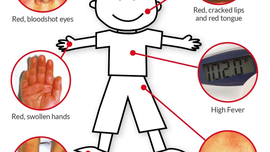 Ziekte van Kawasaki bij kinderen: wat u moet weten over opkomende complicaties tijdens een pandemie van COVID-19