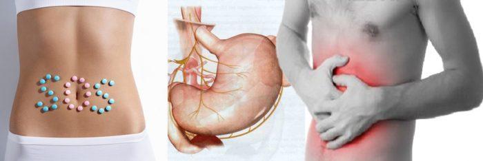 Remedios naturales para la ulcera