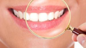 Mengetahui Beberapa Fakta Tentang Gigi
