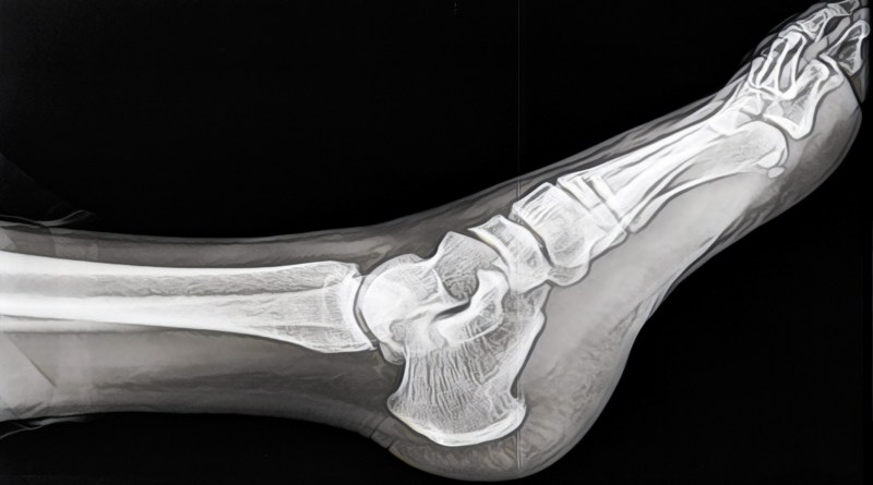 Scientists develop new nanocomposite for bone implants using microwave energy (cover)