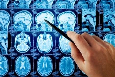 X-rays of the brain.
