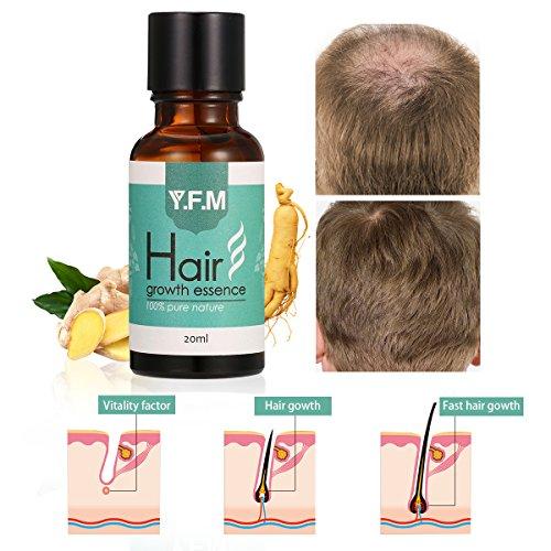 Hair Growth Essence, Y.F.M Herbal Hair Growth Liquid Can Help Hair Growing Fast