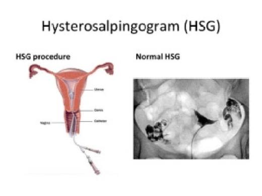 Las pruebas médicas_analíticas_histerosalpingografía y seminograma