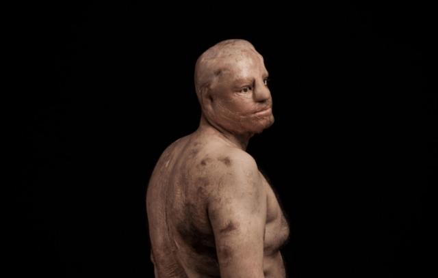 """Mohsen Mortazavi, 34 anos, de Teerã, foi atacado por um colega de trabalho com 3 litros de ácido sulfúrico e 16 facadas. Perdeu um olho e a audição de um ouvido, para além de grandes extensões de pele. Fotografia do vencedor do prêmio L'Iris d'Or/Fotógrafo do ano, vencedora da categoria """"Questões Contemporâneas"""" foto © Asghar Khamseh, Iran, Photographer of the Year, 2016 Sony World Photography Awards"""