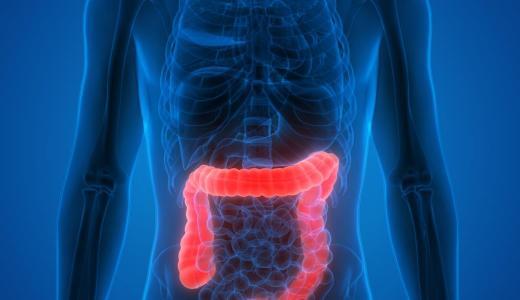 大腸癌は部位別死亡者数が増加傾向