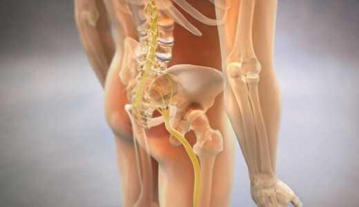 座骨神経痛の根本原因は仙腸関節の機能異常です。