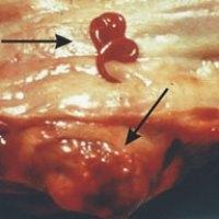 Worm Advice - Spirocerca Lupi
