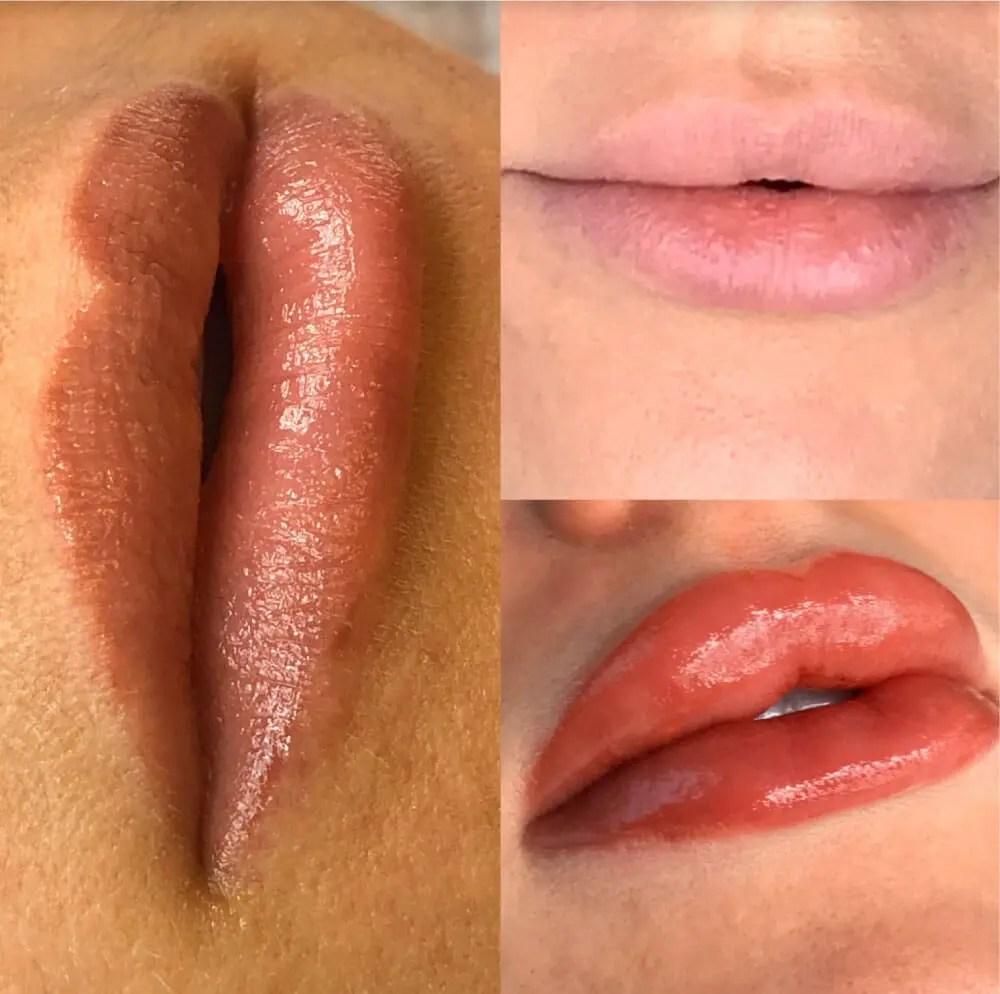 JenniferVerdini-before-after-2