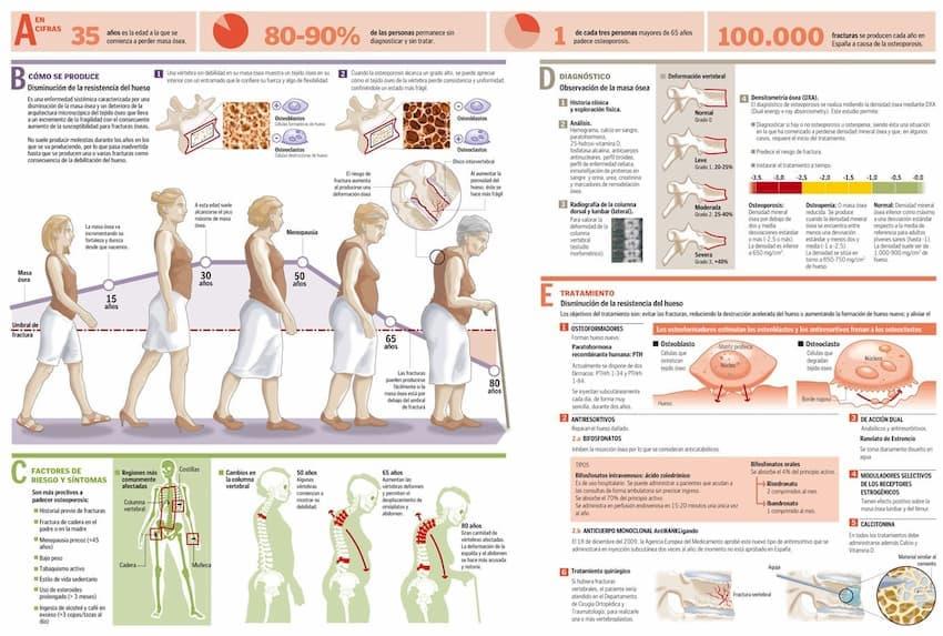 qué-es-la-osteoporosis