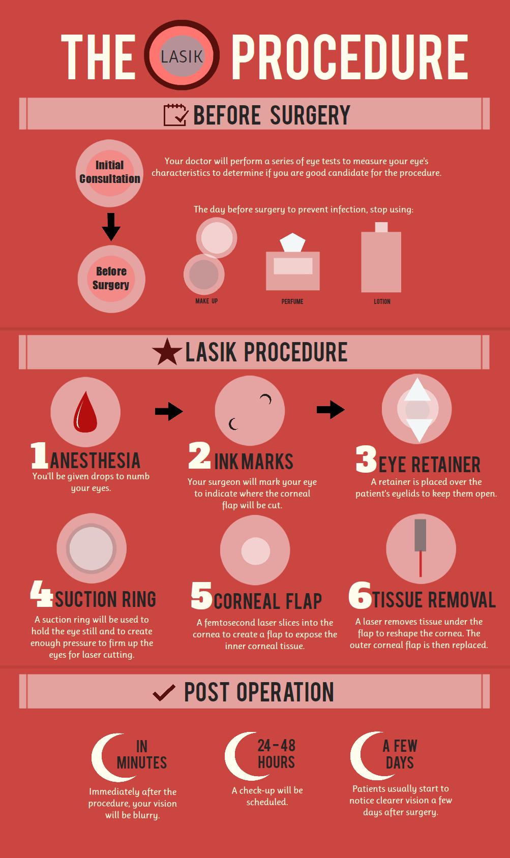 lasik-procedure_50cfa073e4d3d