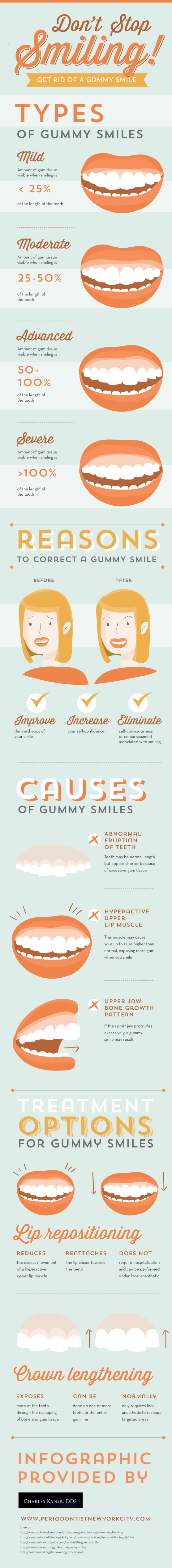 Don't Stop Smiling Get Rid Of A Gummy Smile