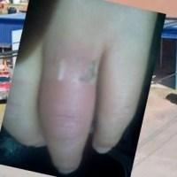 Con una amoladora, bomberos de Oliveros le salvaron el dedo a una nena