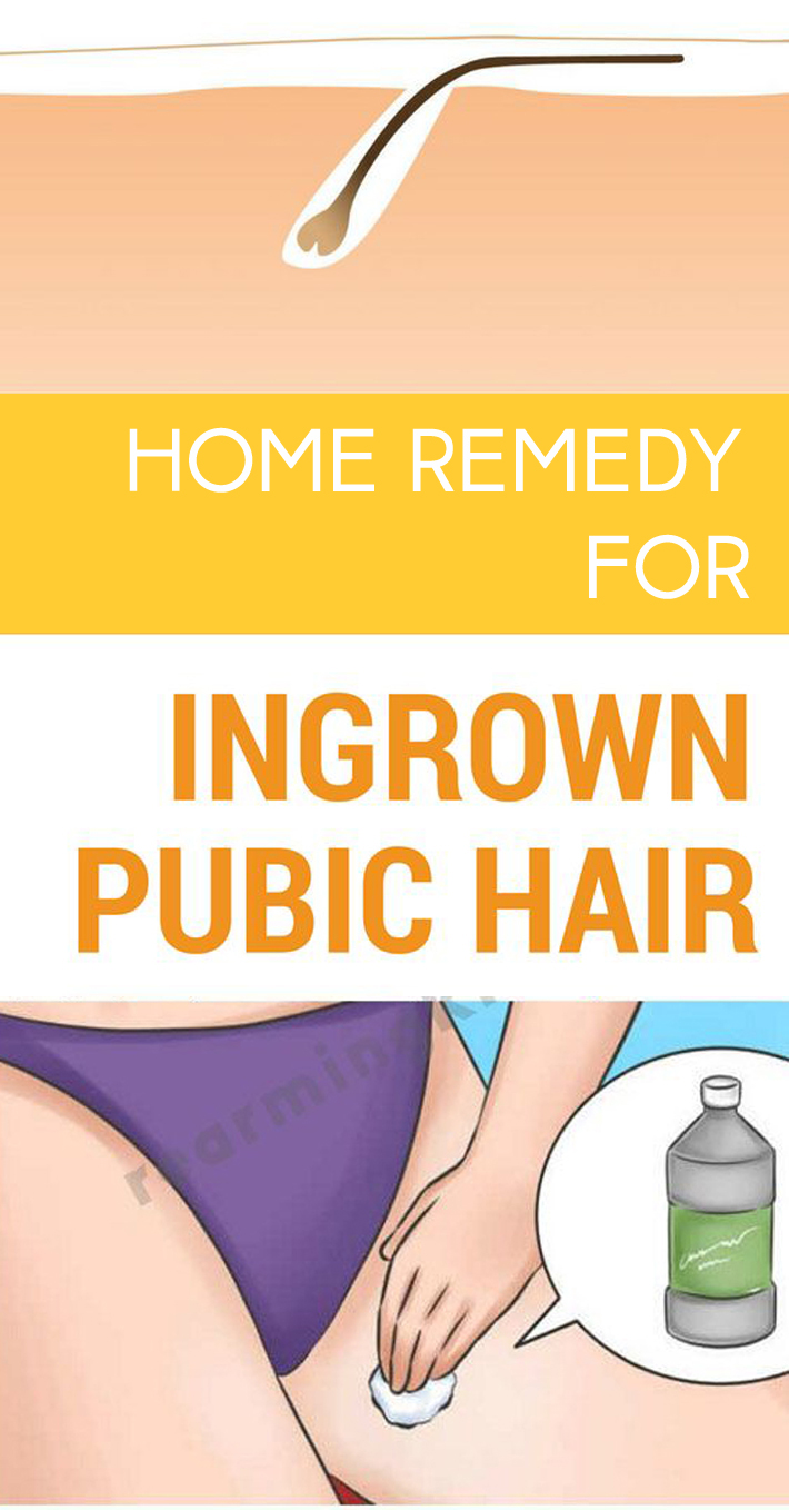 Home Remedy For Ingrown Hair